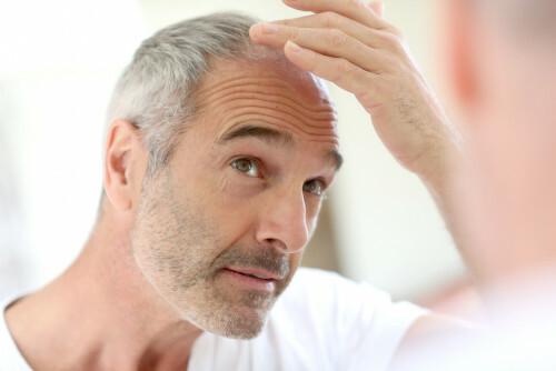 Jak zabránit nadměrnému vypadávání vlasů