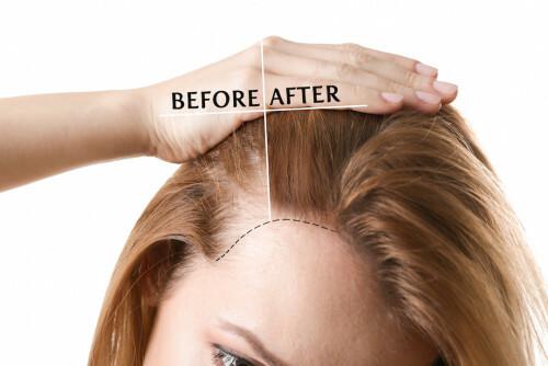 Nadměrné vypadávání vlasů nevyčítejte jen genům