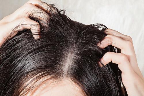 Jak na mastné vlasy