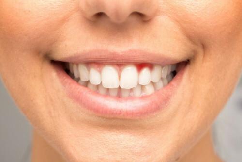 Krvácení dásní znamená poplach