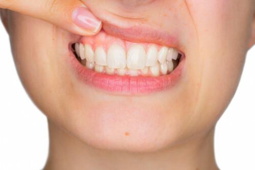 Jak zastavit krvácení z dásní