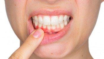 Obnažené zubní krčky