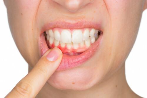 Obnažené zubní krčky řešte včas