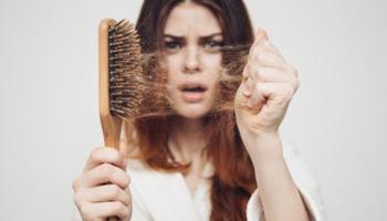 Co je alopecie a jak s ní bojovat